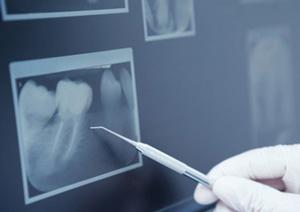 Wurzelkanalbehandlung - Schmerzfreie behandlungsmethoden in der Endodontie - Zahnzentrum Kreuzberg